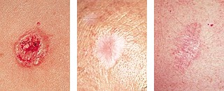 kinds of skin cancer pictures